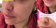 pele descancando no inverno - Pele Descascando no Inverno? 10 Dicas De Como Tratar, Evitar + Resenha