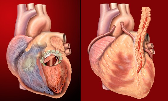 Various anterior views of the heart. Artificial mitral valve in place, and bypass grafts in place. Photoshop illustrations.