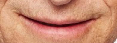 no teeth bill gates