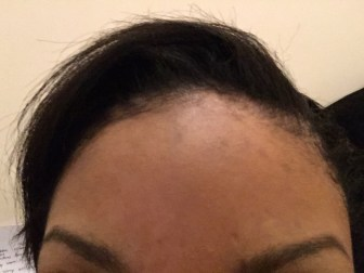 Pigmentation after topical application of Neoretin