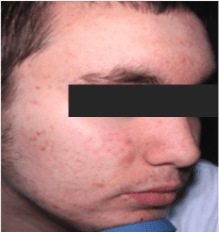 Man – full face acne – after