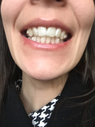 First Invisalign pic!