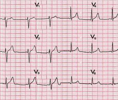Преждевременная деполяризация желудочков сердца