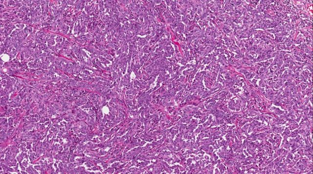 Figure 1: H&E section of tumor (original magnification 10X)