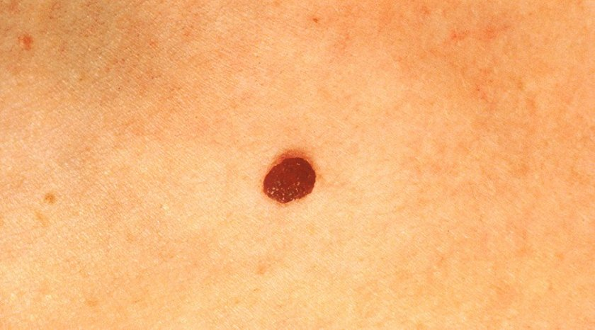 'Eureka moment': #AI software programmed to spot skin cancer by checking pics of moles