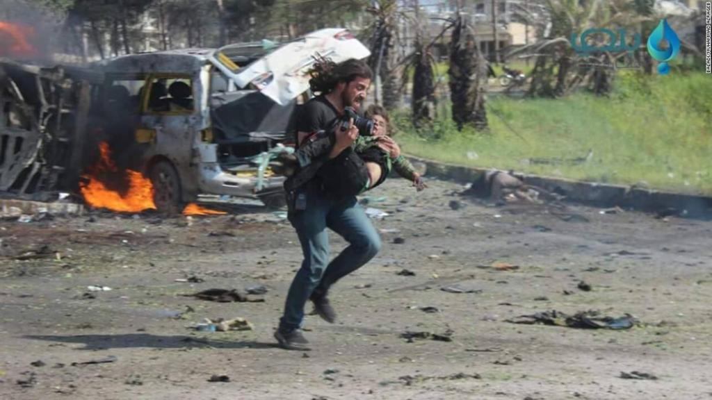 Syria photographer pulls down his camera and picks up an injured boy
