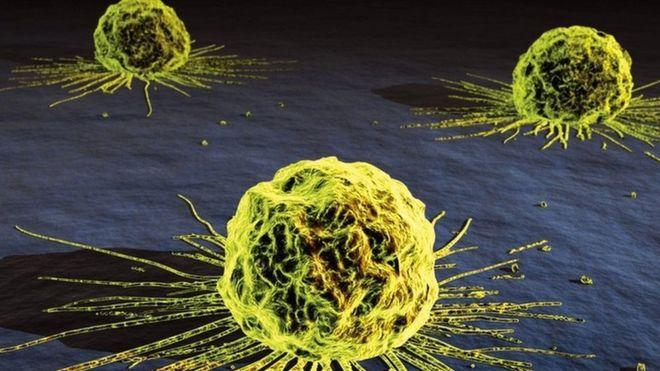 Cervical cancer drug approved for use on NHS in Scotland