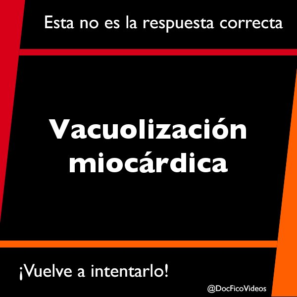 Cirrosis Cardiaca