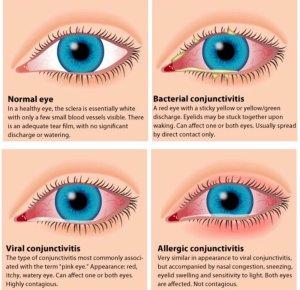 Eye Atlas on Twitter: