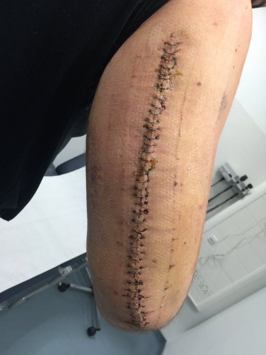 Scott McMillan On Twitter Dont Break Your Arm Guys Just Got These Staples Removed