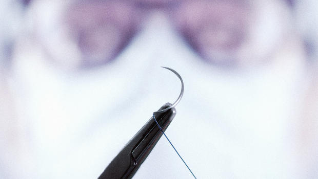 Doctors could monitor ptients after surgery w/ smart surgical thread   #IoT #DigitalHealth