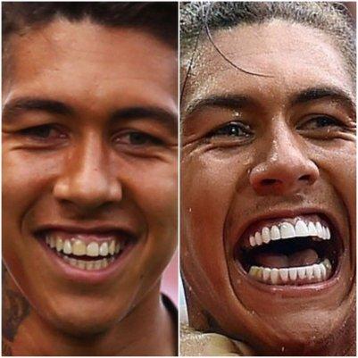 Evolusi pada Treatment Veneer- Global Estetik Dental Care