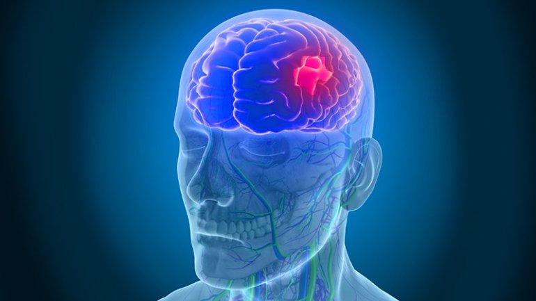 Cerebral infarction