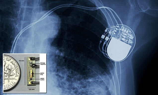 The battery-less pacemaker that could end battery replacement surgery  #healthcare #IoT