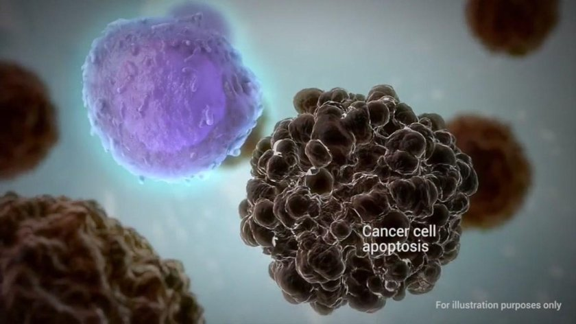 A new treatment at Stanford is helping many people suffering from lymphoma.