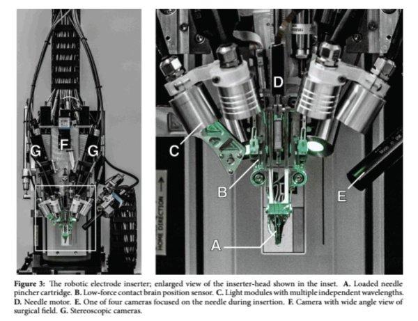 Seguramente el avance más revolucionario: un robot de neurocirugía que inserta automáticamente los hilos finos de los electrodos en el cerebro en lugares precisos, evitando los vasos sanguíneos...