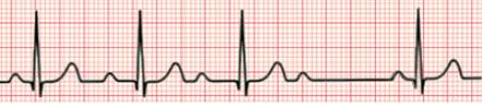 MedTweetorial: #Tweetorial Author: @AvrahamCooperMD    Type: #MedEd  Specialty: #Cardiology #Cards Topics: #ECG #EKG #WenckebachAVnodalblock #MobitzType1 #Wenckebach