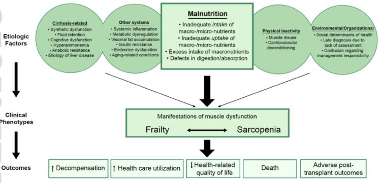 MedTweetorial: #Tweetorial Author: @LizzieAbyMD  Type: #MedEd Specialty: #Gastroenterology #GI Topics: #Cirrhosis #LiverDisease #Frailty #Sarcopenia #Malnutrition