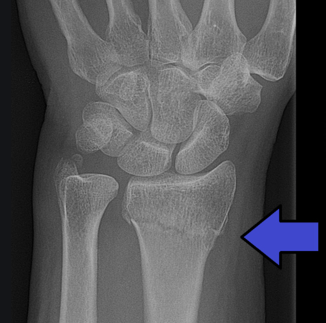 MedTweetorial: #Tweetorial Author: @Ortho_Reviews  Type: #MedEd Specialty: #Ortho #Orthopedics Topics: #DistalRadiusFracture