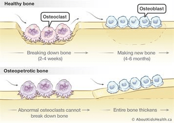 MedTweetorial: #Tweetorial Author: @Ortho_Reviews Type: #MedEd Specialty: #Ortho #Orthopedics Topics: #Osteoclasts #Osteopetrosis