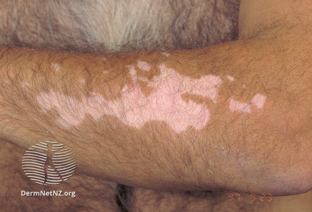 MedTweetorial: #Tweetorial Author: @DrStevenTChen    Type: #MedEd #GraphicMed Specialty: #Derm #Dermatology Topics: #ThePrimaryLesion #DermExam #Plaque #Macule #Papule #Nodule #Vesicle #Patch #Bullae #Pustule #Wheals