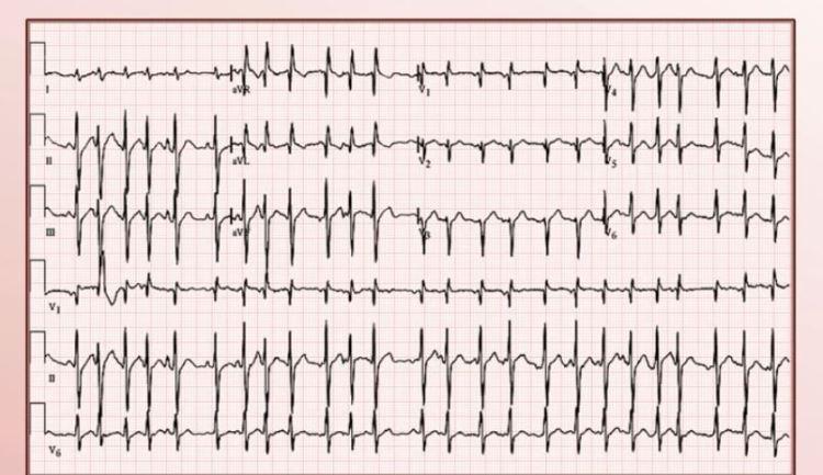 MedTweetorial: #Tweetorial Author: @runthelistpod  Type: #MedEd #GraphicMed Specialty: #Cardiology #CardioTwitter Topics: #Tachyarrhythmias #EKG #ECG #Tachycardia #SVT #AtrialFibrillation #AtrialFlutter #Vtach #MAT #MultifocalAtrialTachycardia