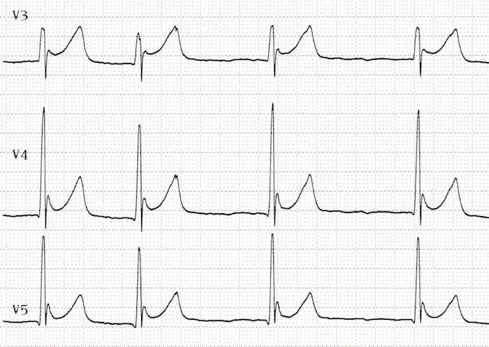 MedTweetorial: #Tweetorial Author: @LKSOM_Medicine  Type: #Case Specialty: #EmergencyMedicine #Cardiology Topics: #ECG #ECG #OsborneWave #Hypothermia