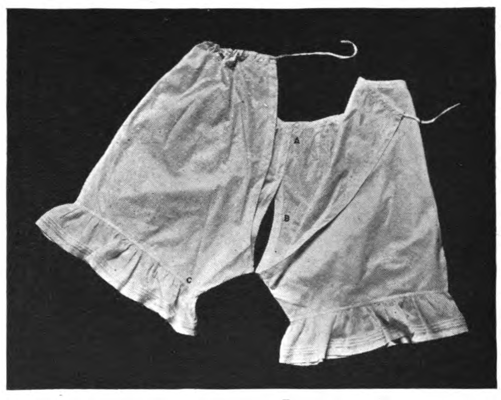"""An example of """"open drawers"""" -- two legs with buttons and ties for women to wear."""