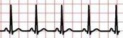 Child Electrocardiogram (EKG)