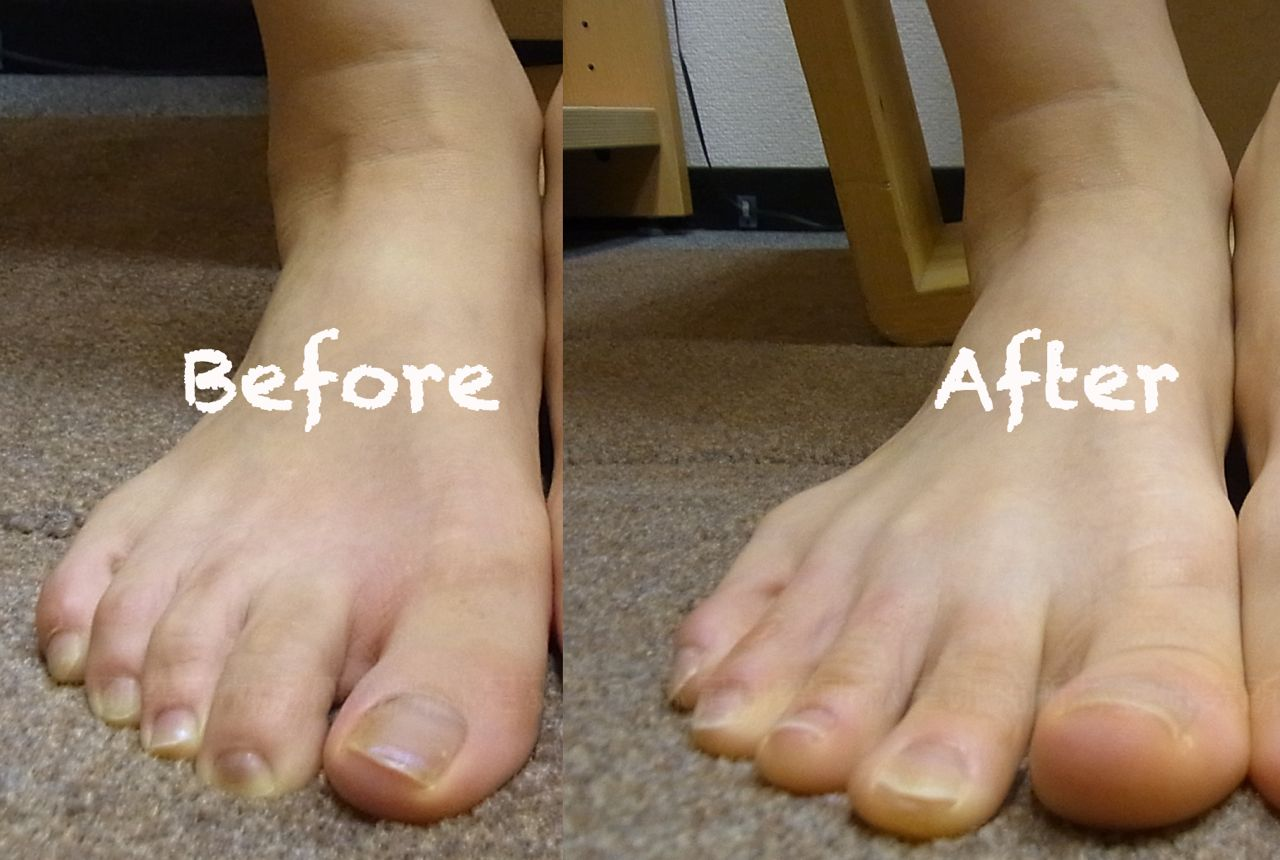 Hammertoe Treatment Without Surgery
