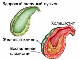 Холецистит и здоровый желчный пузырь