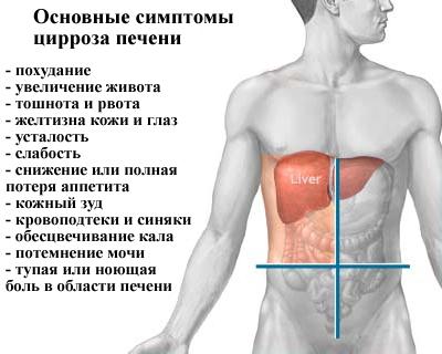 Ang gamot ay tumutulong sa cirrhosis ng atay, kaya ang mga kopya na may mga sintomas