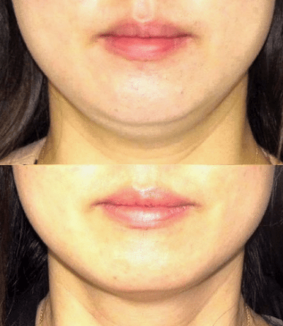 Coolsculpting beforeafter 5