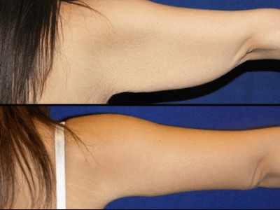 Coolsculpting beforeafter 6