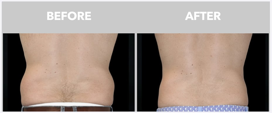photo of the back of a man before and after coolsculpting at peace.love.med.