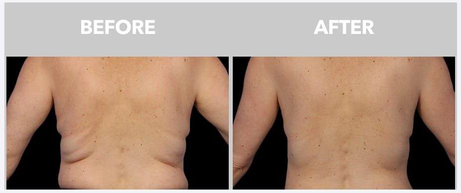 before and after coolsculpting photo from Peace.Love.Med.