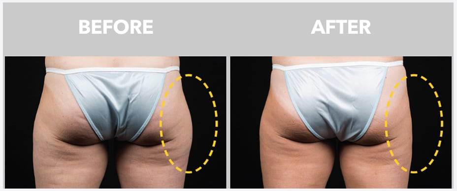 photo of a woman's butt before and after coolsculpting at peace.love.med.