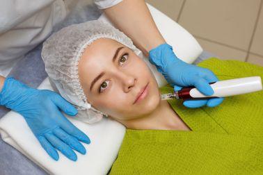 Woman receiving Dermapen therapy