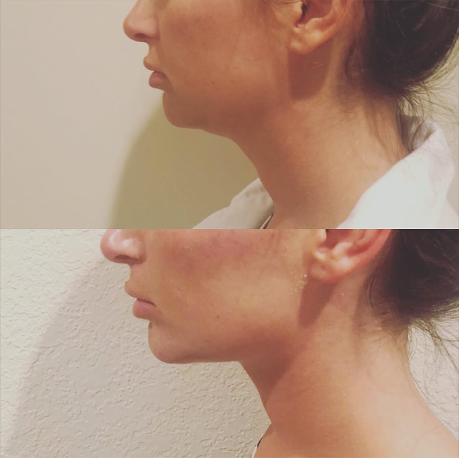Before and after pictures from a chin augmentation procedure on a woman at Peace.Love.Med.