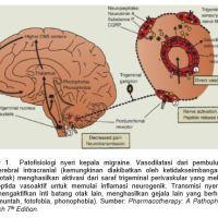 Sakit Kepala (Headache atau Sefalgia)