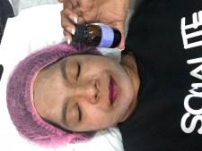 Skin Peel - Refined Aesthetics - PeanutGallery247