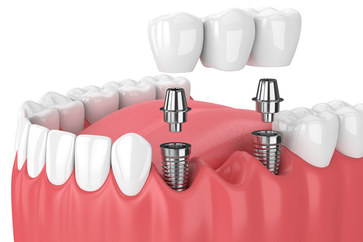 Cracked Tooth Crown Ottawa ON