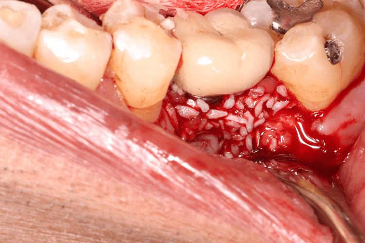 Gum Disease Treatment Ottawa ON