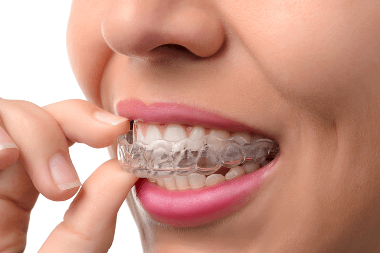 Invisalign Teeth Treatment Ottawa ON