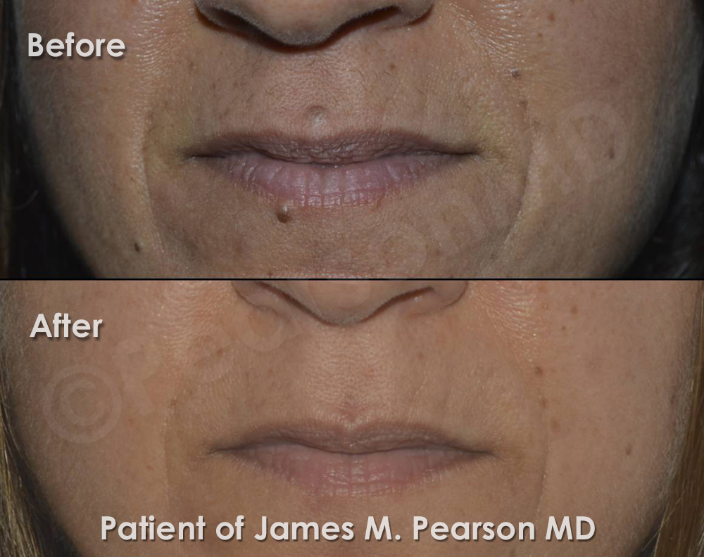 Hair Laser Upper Removal Lip