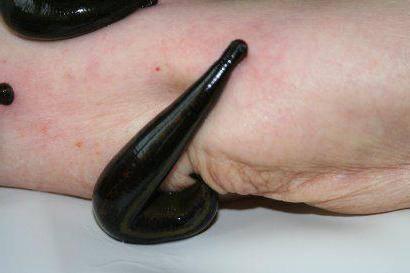 Вред пиявок при простатите настойка от простатита из осины