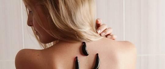 Cum se utilizează lipitori acasă. Rețete de aur de hirusoterapie