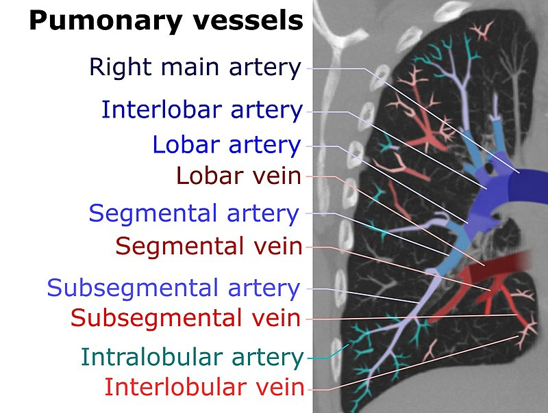 Artery Anatomy Ct Middle Pulmonary