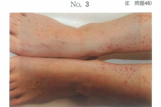 血管 炎 性 アレルギー