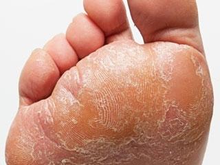 Μυκητίαση σε διαβητικό πόδι